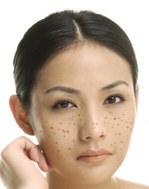 怎么预防脸上长雀斑
