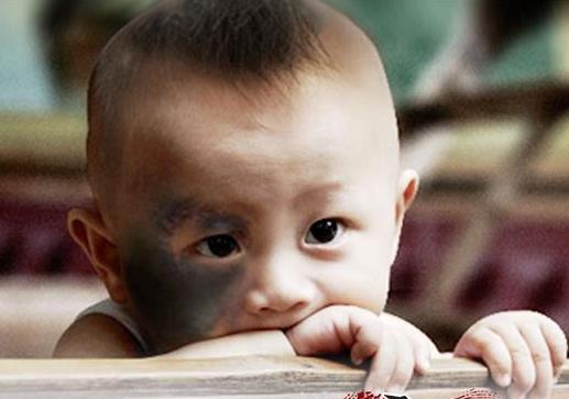孩子的红胎记应该怎么消除